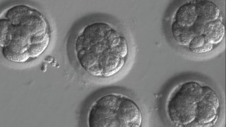 A Gene-Editing Milestone May Mean Fewer Hereditary Issues Someday
