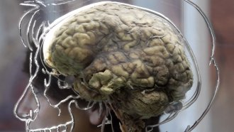 Is The Herpes Virus A Key To Curing Alzheimer's Disease?