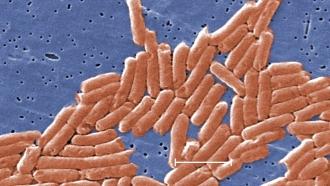 Salmonella Newport bacteria under a microscope